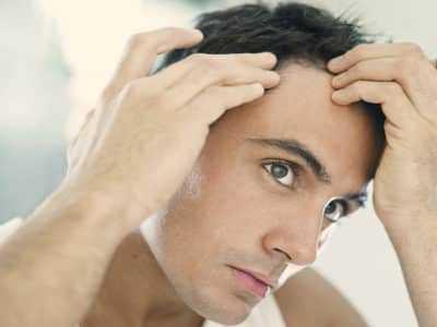 Облысение у мужчин: типы и причины выпадения волос