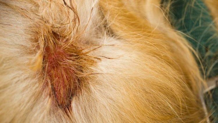 Микотическая (грибковая) экзема на руках и ногах