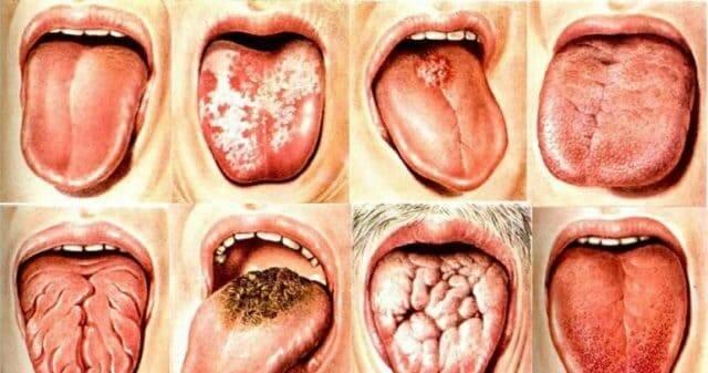 Почему появляются прыщи во рту?