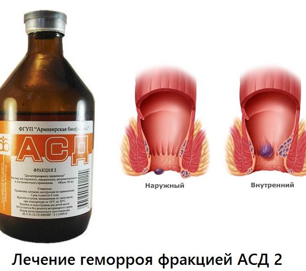 Схема, как пить фракцию асд 2 для профилактики заболеваний