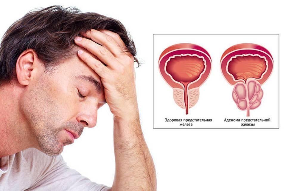 Какой врач лечит простатит, или к кому обращаться мужчине при появлении симптомов?