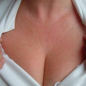 Какая причина прыщей на грудине у женщин