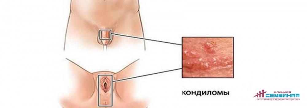 Кондиломы анальной области: причины появления и лечение. опасны ли они? мнение эксперта