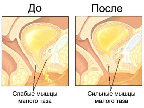 Простатит мышцы тазового дна употреблять алкоголь при простатите