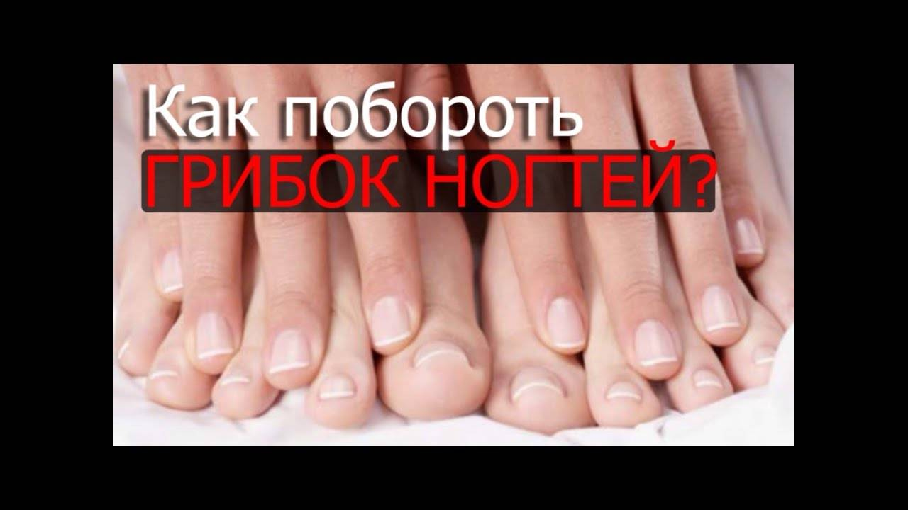 В группе риска все! грибок на ногах: симптомы, лечение, профилактика