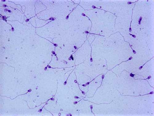Причины появления патологического эякулята и способы лечения патоспермии