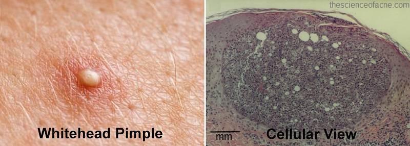 Красные прыщи на головке у мужчин лечение. красные прыщи на головке у мужчин: фото, причины, лечение
