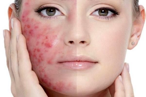 Возможные причины возникновения и лечение акне на лице