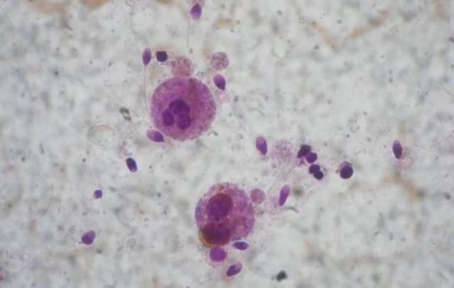 Что такое агглютинация и как вылечить заболевание?
