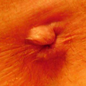 Шишки в области анального отверстия: причины и методы лечения