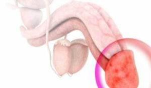 Боль в половом члене: причины, диагностика и лечение
