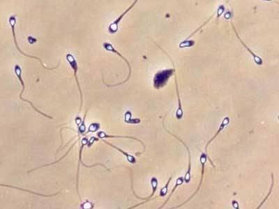 Что такое агглютинация в спермограмме и как лечить проблему?