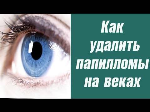 Способы удаления папилломы на веке глаза