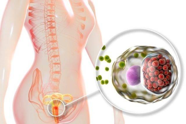Эффективные меры для профилактики хламидиоза у мужчин и женщин