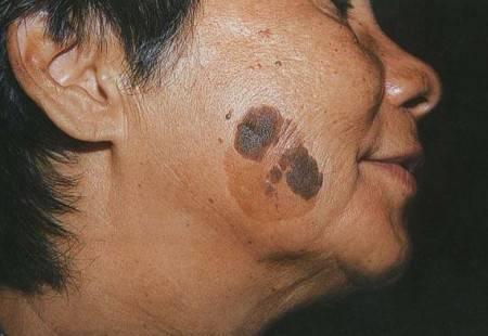 Кератома: симптомы, лечение и диагностика