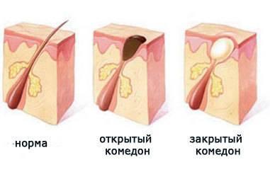 Акне или угревая сыпь