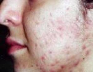 Акне (угревая сыпь): причины, симптомы и методы лечения