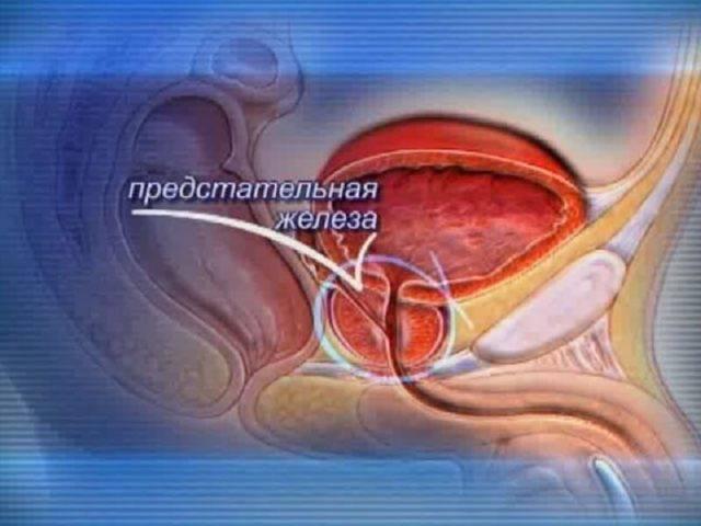Что такое киста предстательной железы: симптомы и лечение