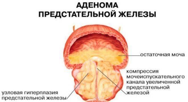 Показания к установке цистостомы и выполнение операции