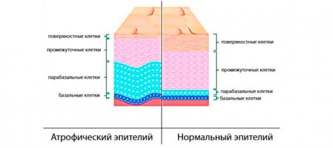 Лечение народными средствами вульвита, вагинита и старческого кольпита