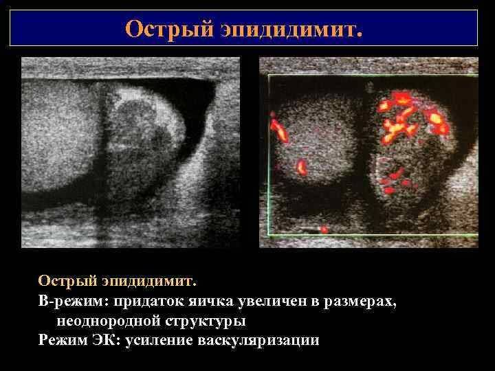 Эпидидимит: самое грозное осложнение – бесплодие!
