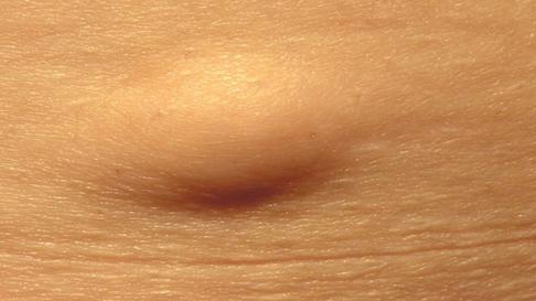 Образования на внутренней поверхности бедра. уплотнение на внутренней стороне бедра у женщин: причины, диагностика, лечение и народная медицина