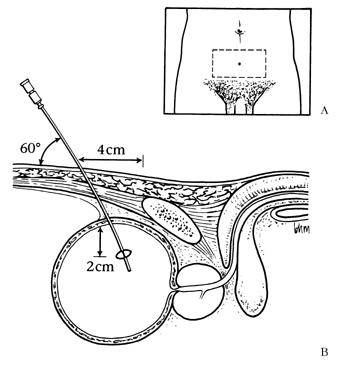 Как проводится цистостомия мочевого пузыря?