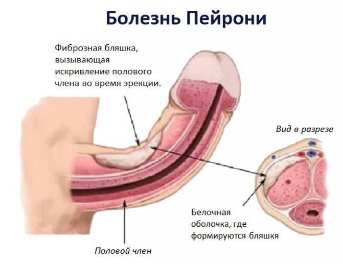 Воспаление полового члена