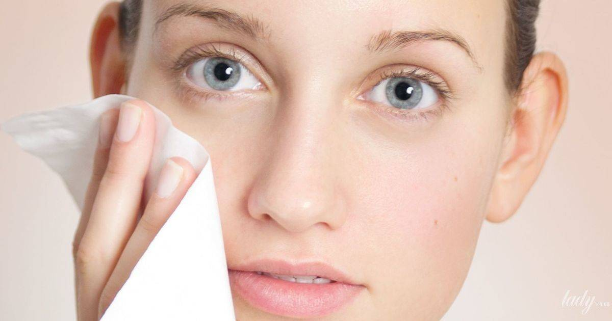 Себорея на лице — причины и методы лечения