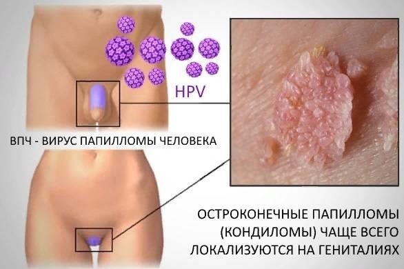 Чем отличается папиллома при впч от кондиломы и ее лечение