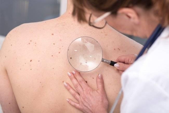 Папилломы на теле: виды, причины, способы борьбы и профилактика