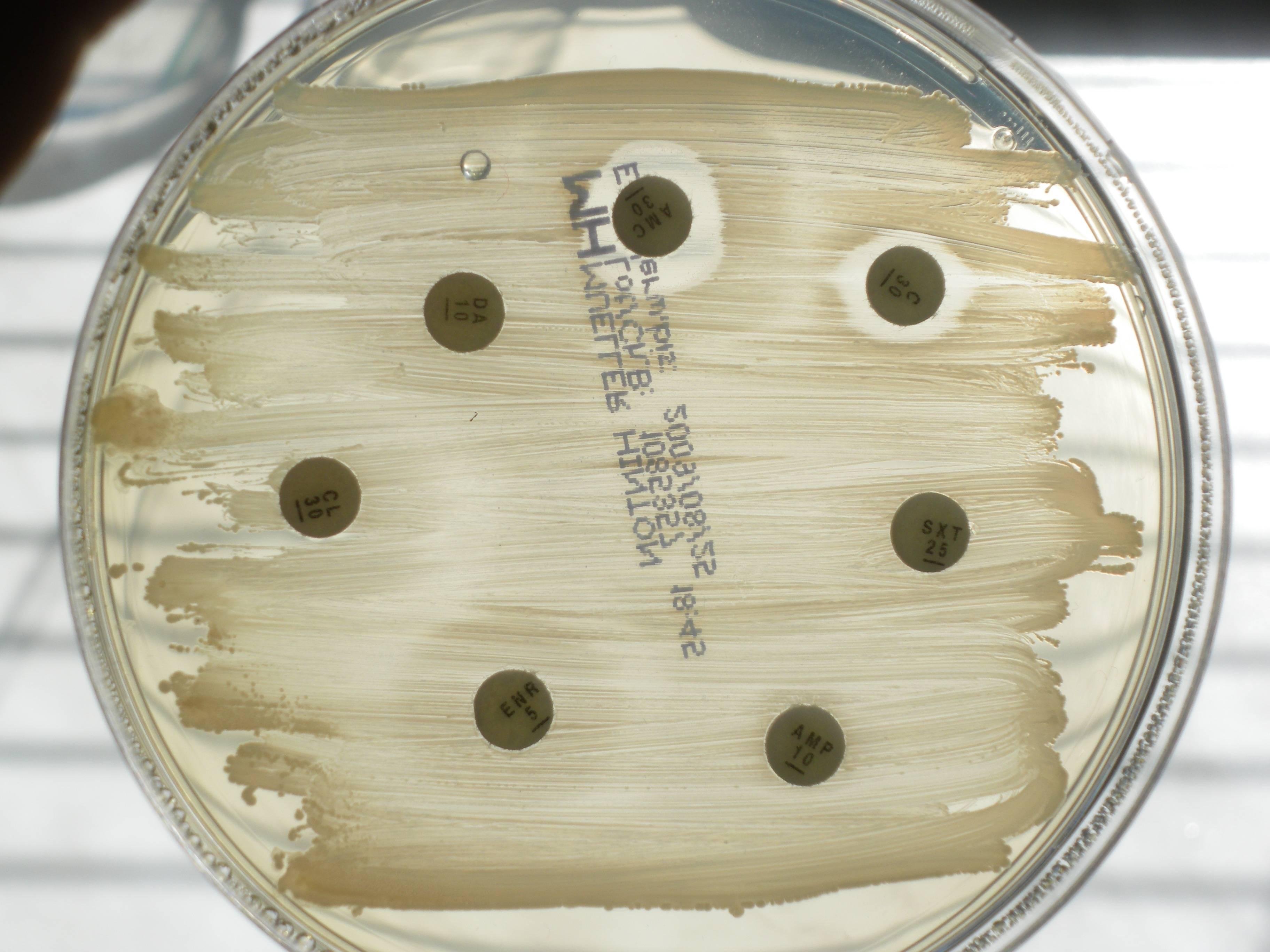 Антибиотики против стафилококка золотистого