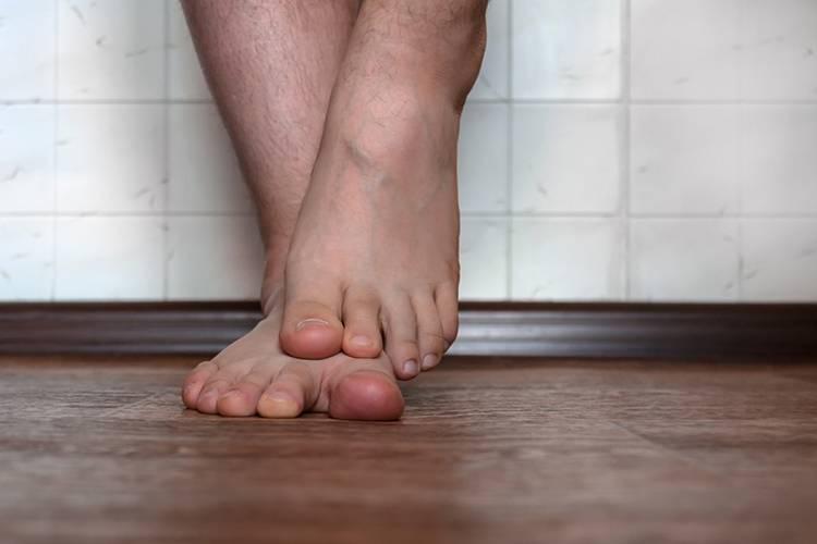 Грибок на ногах — простые, быстрые и эффективные методы лечения грибка стопы и ногтей (100 фото)