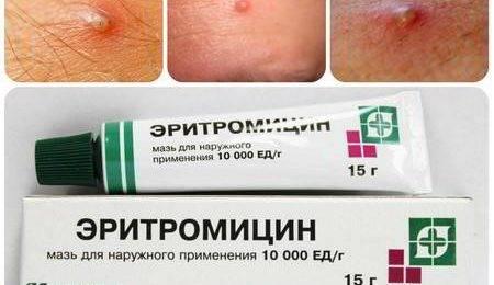 Проблема с кожей: какие средства от прыщей эффективны