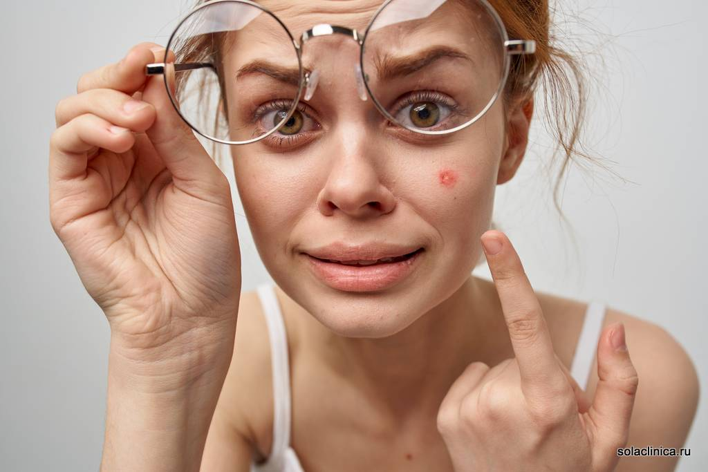 Выдавливание прыщей на лице: последствия и техника удаления