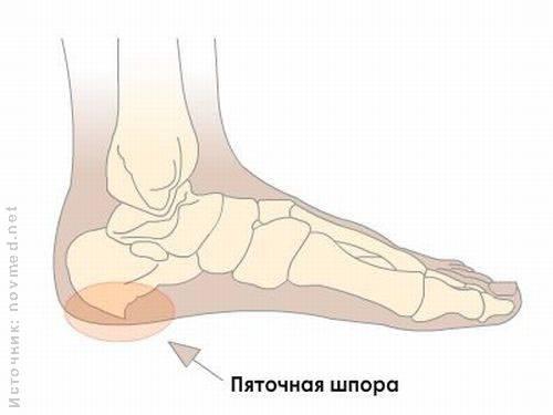 Больно ходить: лечение и профилактика пяточной шпоры