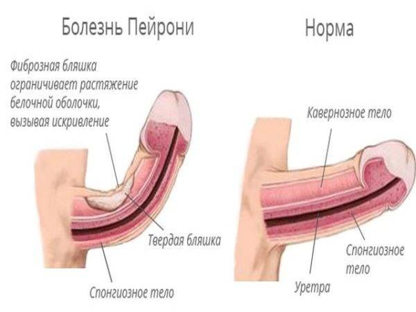 Болезнь пейрони у мужчин: причины, признаки, лечение заболевания