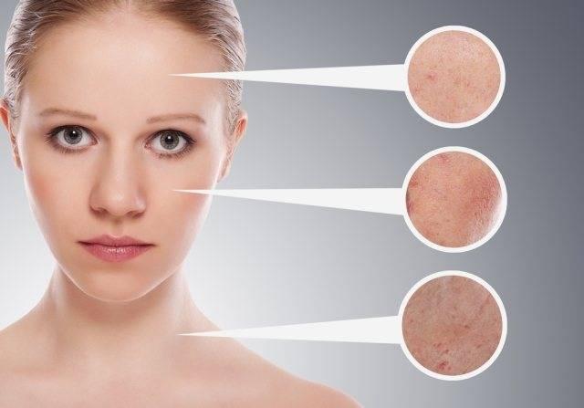 Прыщи на спине у женщин – причины и лечение