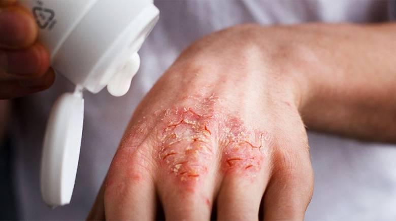 Препараты вызывающие аллергию