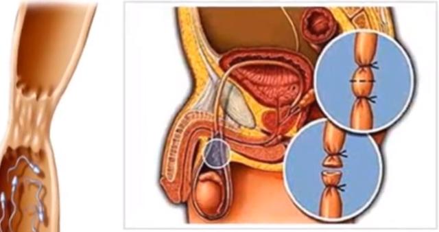 Биопсия яичка у мужчин: описание процедуры, подготовка, стоимость и отзывы пациентов