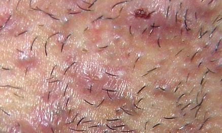 Сыпь на лобке у мужчин: фото, возможные заболевания, удаление