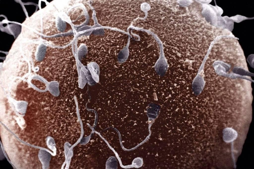 Как быстро улучшить морфологию спермограммы