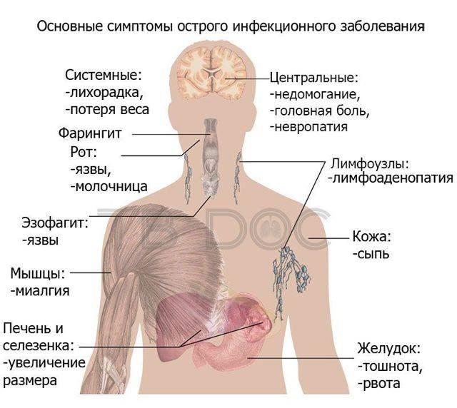 Расположение лимфоузлов на теле человека в картинках и схемах с подробным описанием и методикой обследования