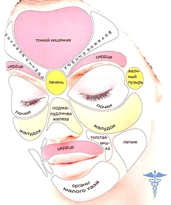 Почему появляются прыщи на лице: причины возникновения у женщин и девушек, способы лечения