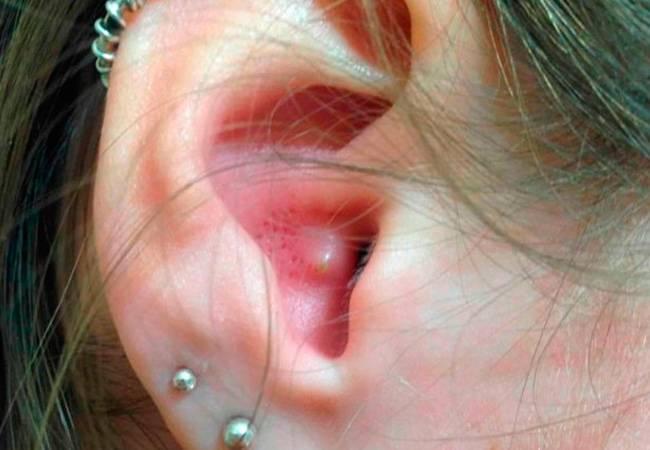 Черная сера в ухе у человека. грибок в ухе: причины, симптомы и лечение