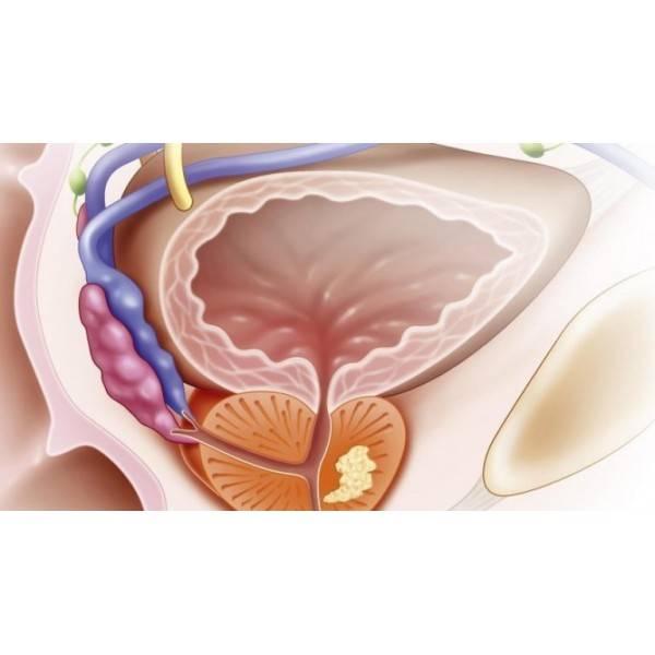 Киста предстательной железы: причины, лечение
