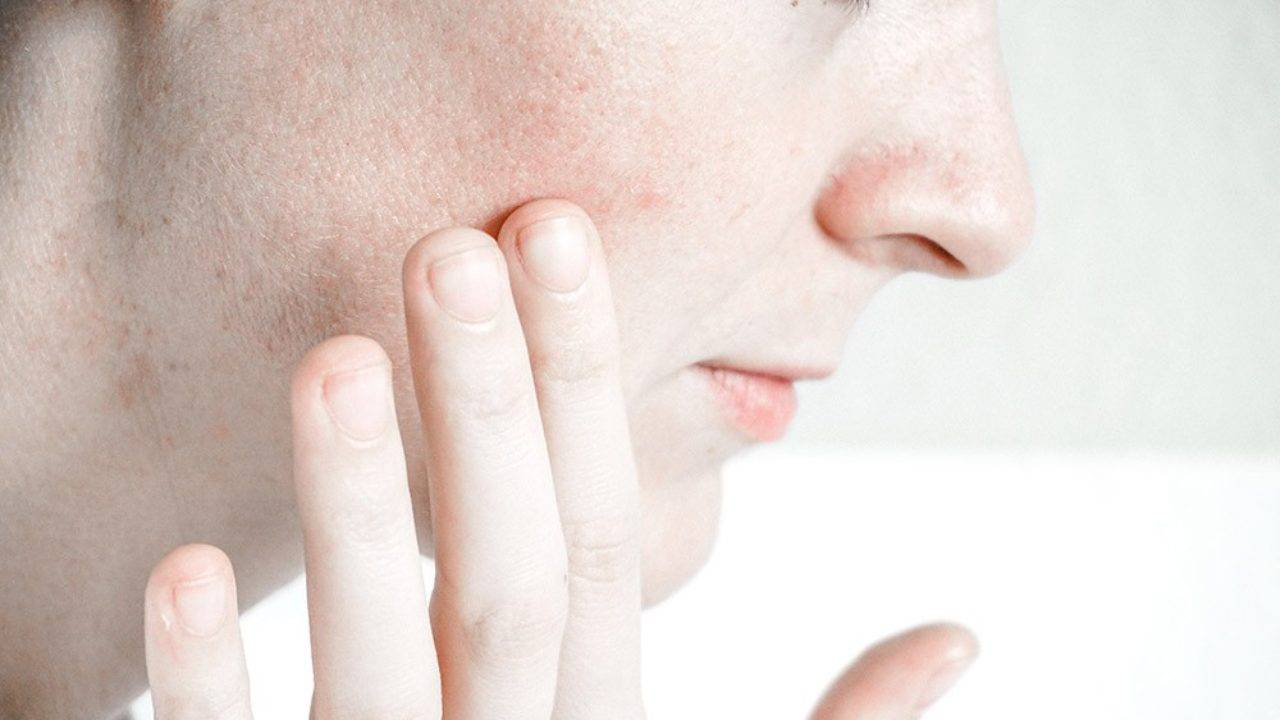 20 видов прыщей на лице и 100+ способов лечения