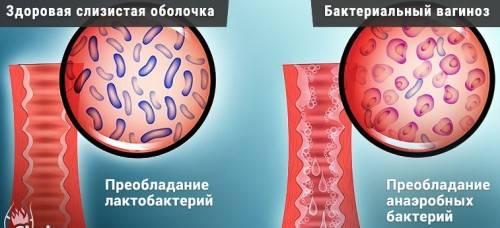 Эффективные препараты для лечения гарднереллы у женщин