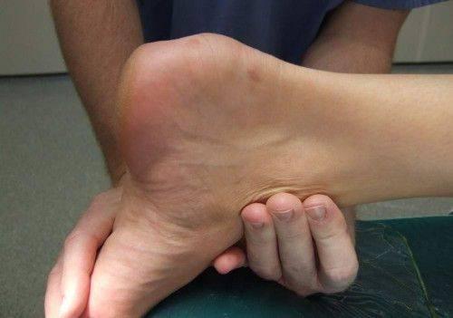 Папиллома на стопе: причины, опасность и лечение