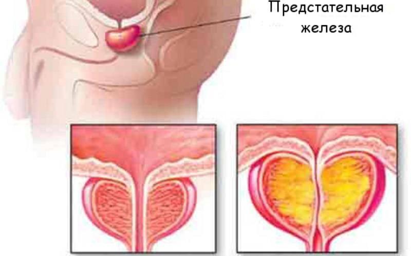Что такое пиоспермия у мужчин, каковы ее причины и влияние на зачатие и беременность?